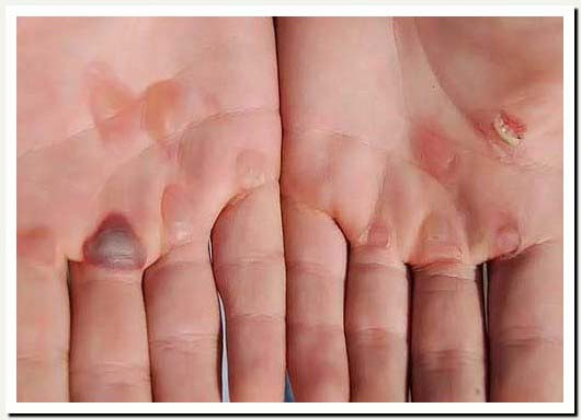 blistersonblisters How to Heal your Blisters Faster...but will you do it?